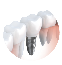 Raymond Liu, DDS offers Dentap Implants in Edmonds, WA