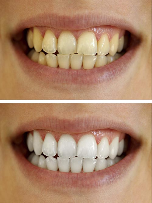 A before and after image of patients yellow teeth being whitened.